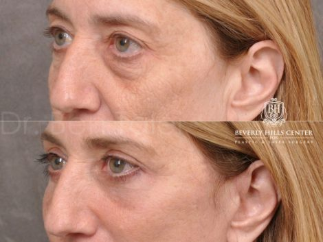 AuraLyft, Upper & Lower Eyelids, CO2 upper lip – Left Side