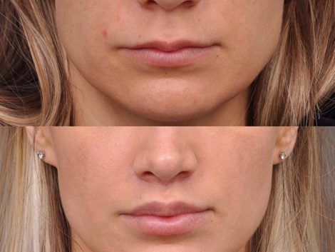 Modified Upper Lip Lift - Front