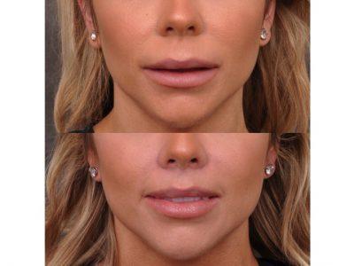 Modified Upper Lip Lift - Front