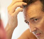 Hair Transplant Beverly Hills CA