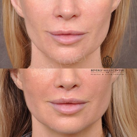 Modified Upper lip lift front