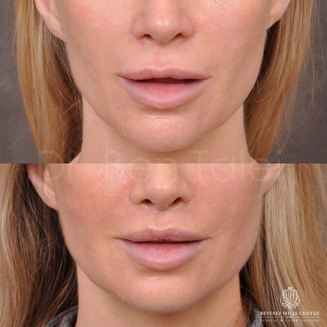 Modified Upper lip lift