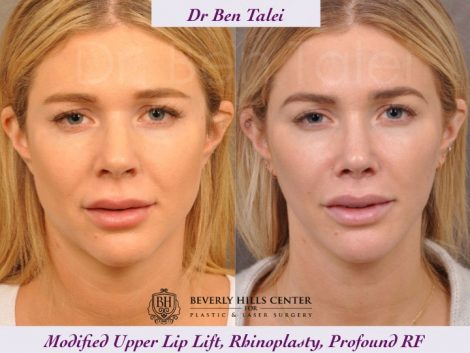 Rhinoplasty, Modified Upper Lip Lift, Profound RF - Front
