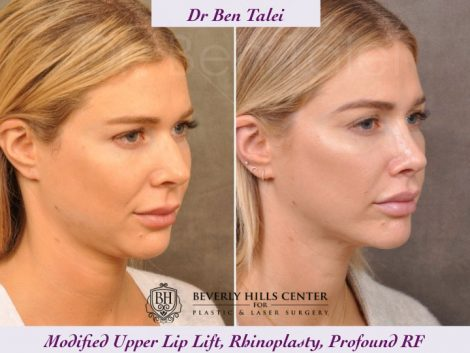Rhinoplasty, Modified Upper Lip Lift, Profound RF - Right Side