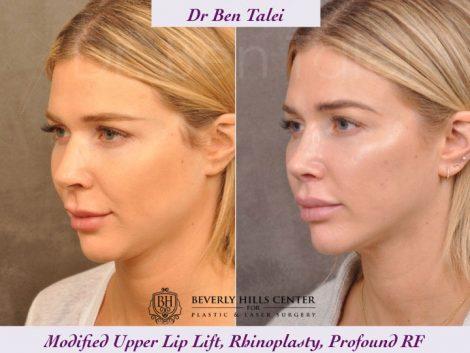 Rhinoplasty, Modified Upper Lip Lift, Profound RF - Left Side