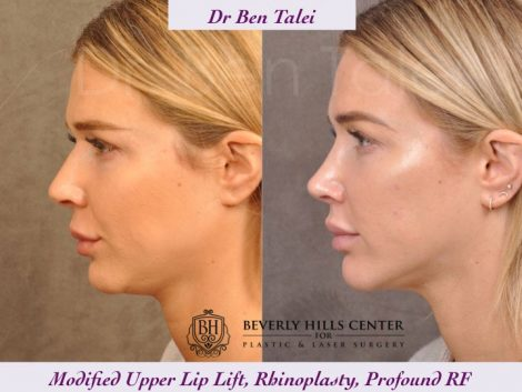 Rhinoplasty, Modified Upper Lip Lift, Profound RF - Left Side