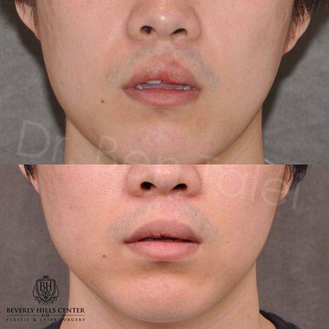 Cleft lip scar revision