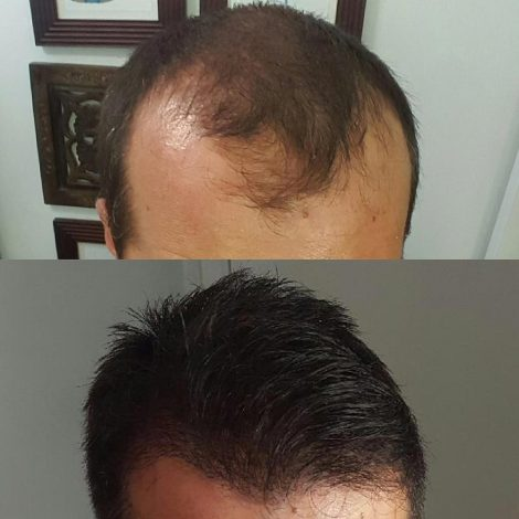 Before & after FUE, and after at the 9 months post op mark.