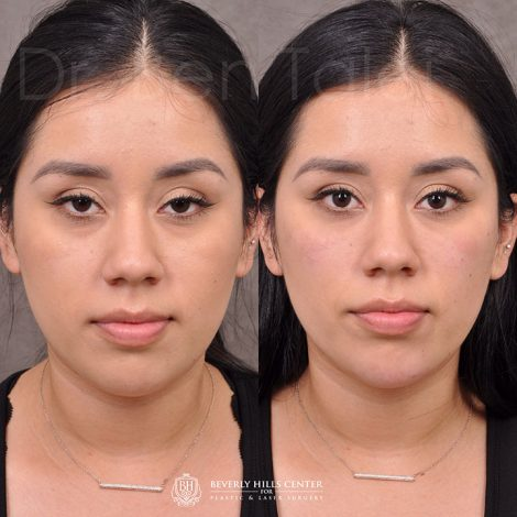 Non Surgical - Before & Afters - Beverly Hills Center