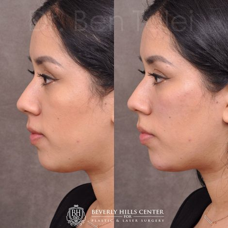 Fillers - Tear trough, chin and cheek.