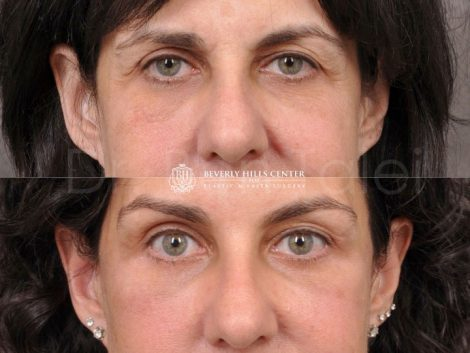 AuraLyft, BrowLift, Lower Eyelids (2 months post) – Front