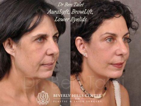 AuraLyft, BrowLift, Lower Eyelids (2 months post) – Right Side