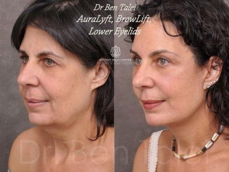 AuraLyft, BrowLift, Lower Eyelids (2 months post) – Left Side