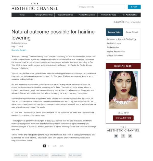Natural outcome possible for hairline lowering - screenshot of the article