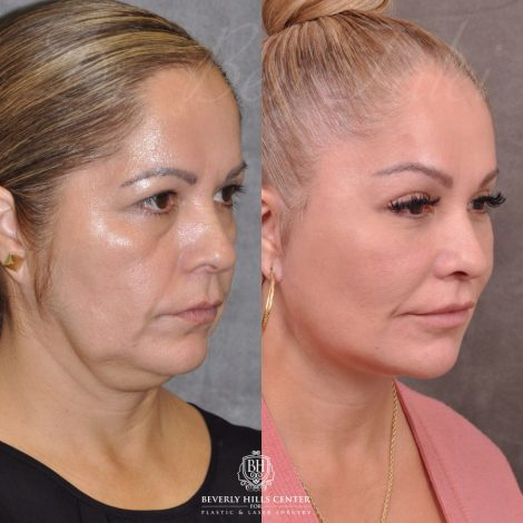 Auralyft, Browlift, Modified Upper Lip lift, Upper Bleph & Earlobe Reduction