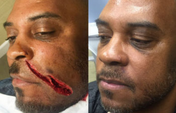 an before after photo of an african american with a wound on his face and without a trace of it after the surgery