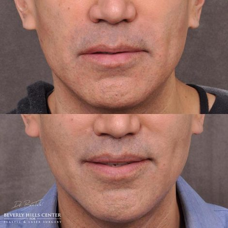 Modified upper lip lift and Profound - Front