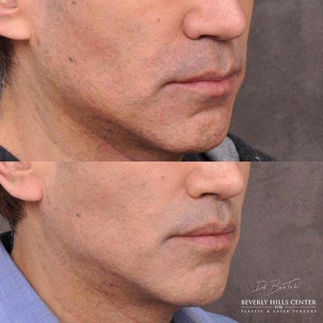 Modified upper lip lift and Profound - Right Side