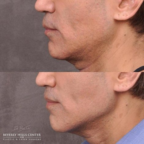 Modified upper lip lift and Profound - Left Side