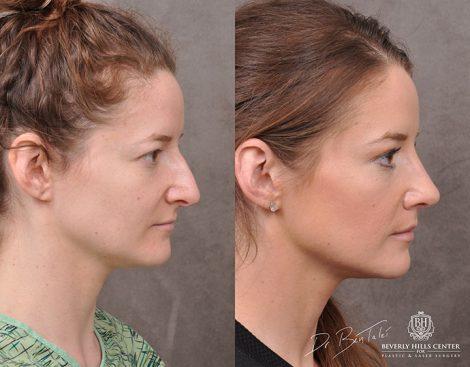 Rhinoplasty & Modified Upper Lip Lift – Front