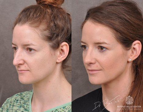 Rhinoplasty & Modified Upper Lip Lift – Left Side