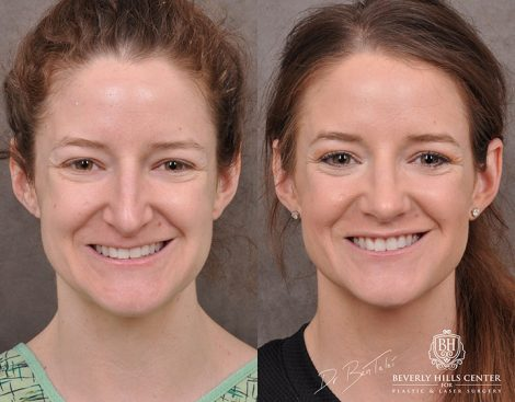 Rhinoplasty & Modified Upper Lip Lift – Right Side