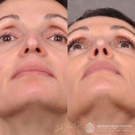 Natural Rhinoplasty for Form and Function