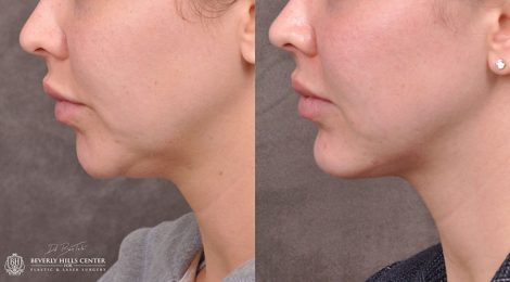 Chin Implant & Profound RF - Left Side