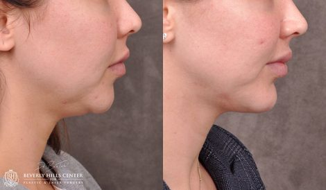 Chin Implant & Profound RF - Right Side