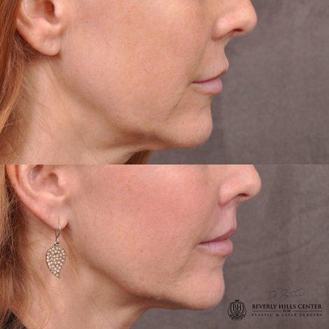 Modified upper lip lift - Right
