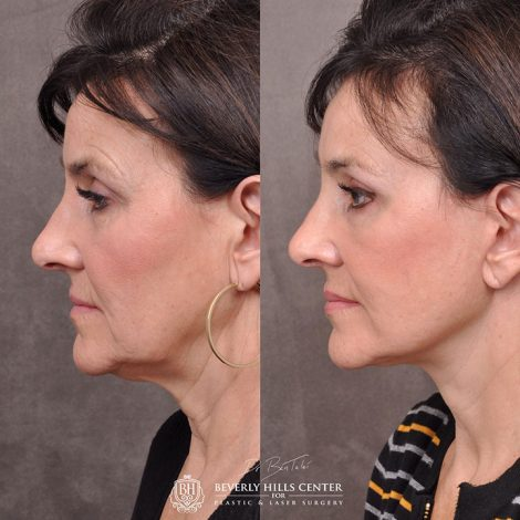 AuraLyft, browlift, Ptosis repair, Upper and lower blepharoplasty with fat repositioning, SMAS Graft lip augmentation, perioral CO2 laser.