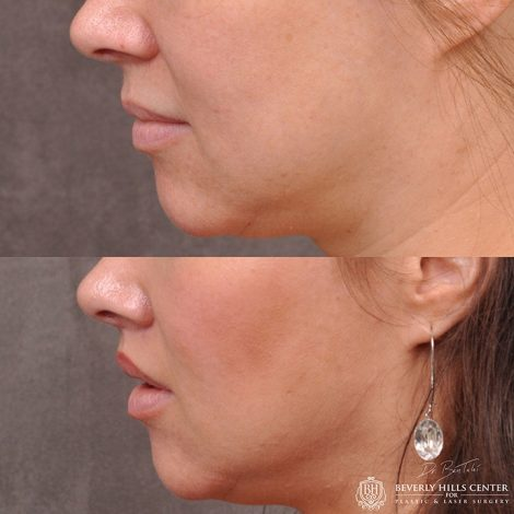 Modified upper lip lift - Left