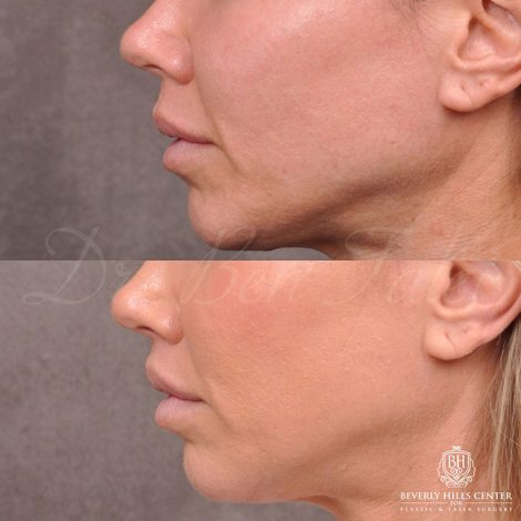 Modified Upper Lip Lift and Profound RF skin tightening - Left Side