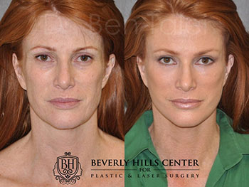 Patient Before and After Eye Area Treatment Beverly Hills CA
