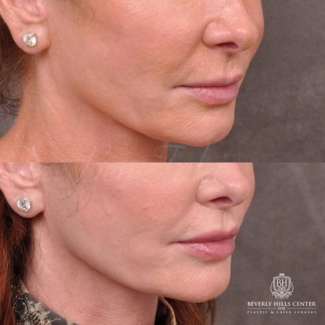 Modified Upper lip lift and Profound RF skin tightening - Right Side