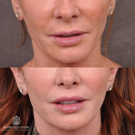 Modified Upper lip lift and Profound RF skin tightening - Front