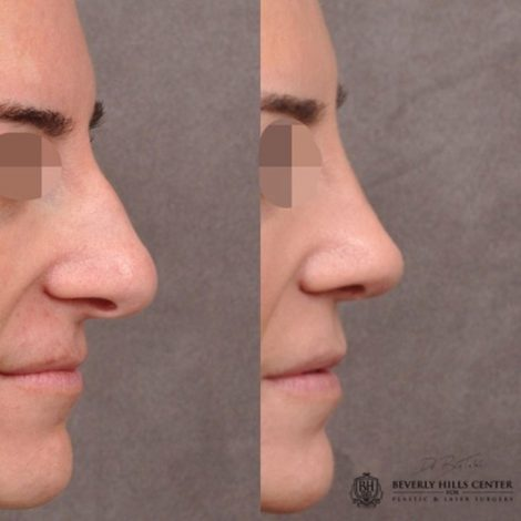 Primary Natural Rhinoplasty 6 months post - Right