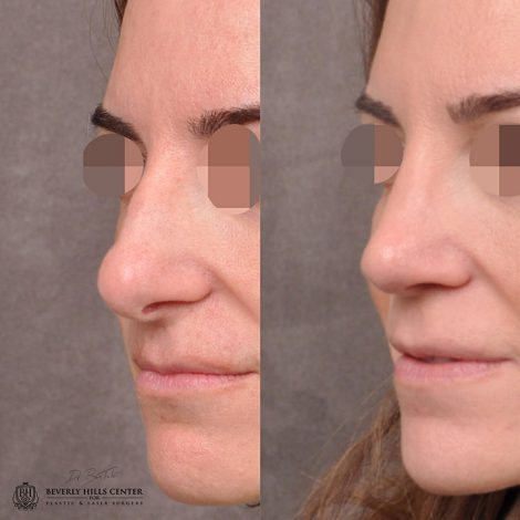 Primary Natural Rhinoplasty 6 months post - Left