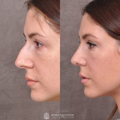 Natural Rhinoplasty - 1 month after surgery