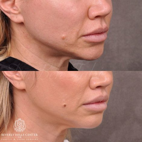 Modified Upper Lip Lift and Profound RF skin tightening