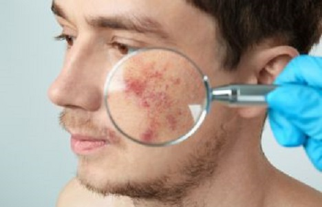 Young Man with Severe Acne