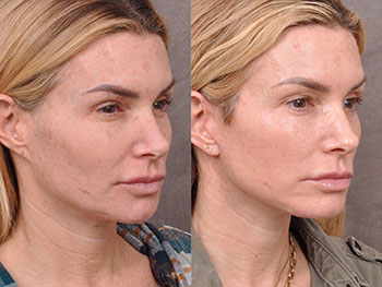 Beverly Hills Center Female Patient Before and After Auralyft Procedure
