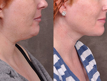 Beverly Hills Center Female Patient Before and After Mini Weekend Necklift Procedure