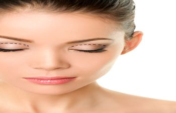 Eyelid Surgery Beverly Hills CA