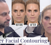 Fyller Facial Contouring Before After - youtube cover